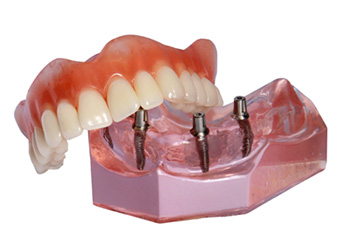 All-on-4 denture model
