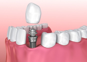 Image showing each component of a dental implant.