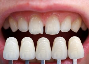Want to fix your tooth gaps for good try porcelain veneers try porcelain veneers solutioingenieria Image collections
