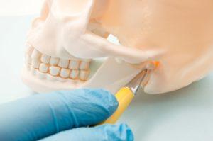 Model of temporomandibular joint